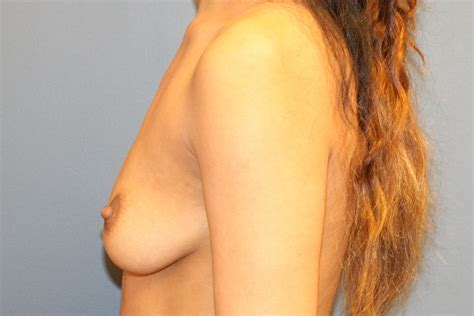 Breast augmentation before and after photos virginia beach jpg 1024x683