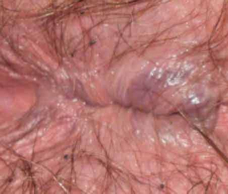 Hemorrhoids signs, diagnosis, and treatment jpg 452x385
